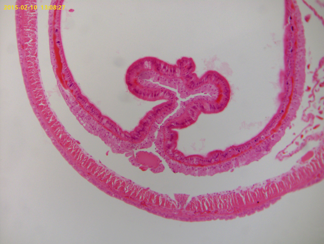 Earthworm (Cross Section)