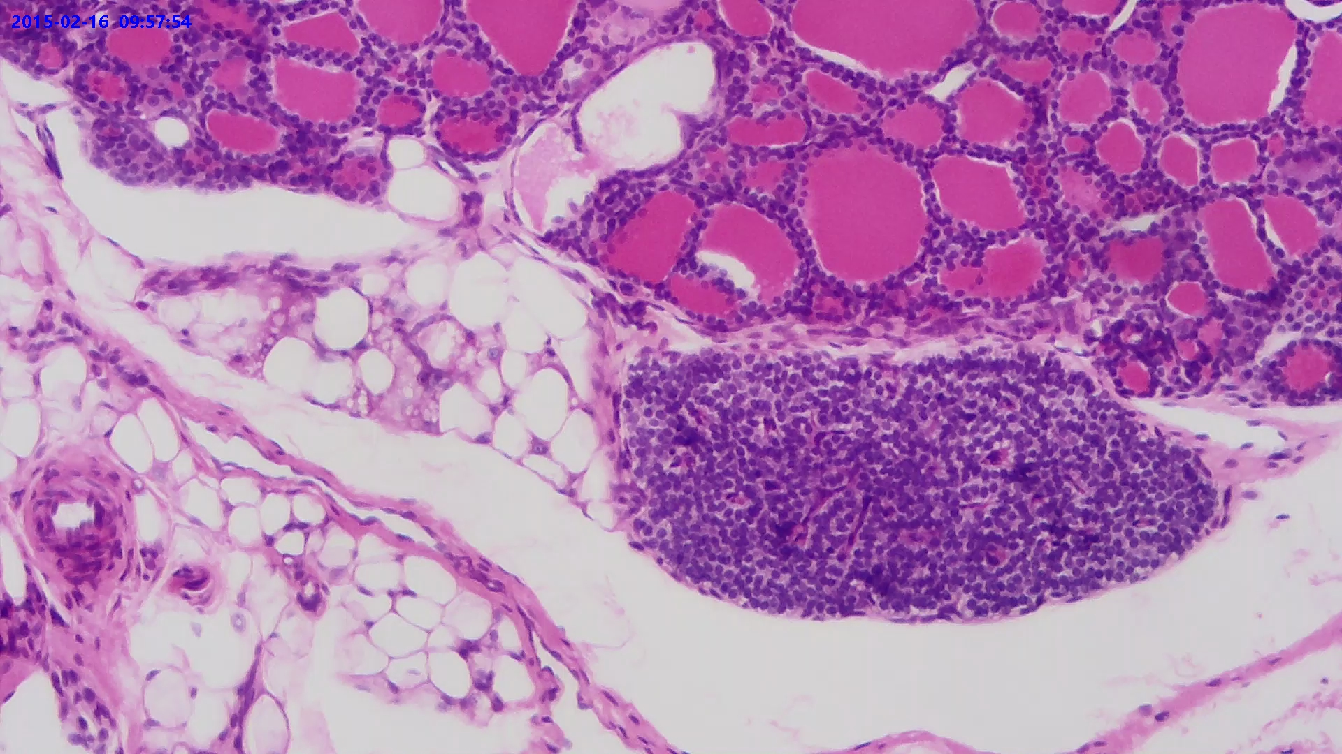 Simple Cuboidal Epithelium. Sec.
