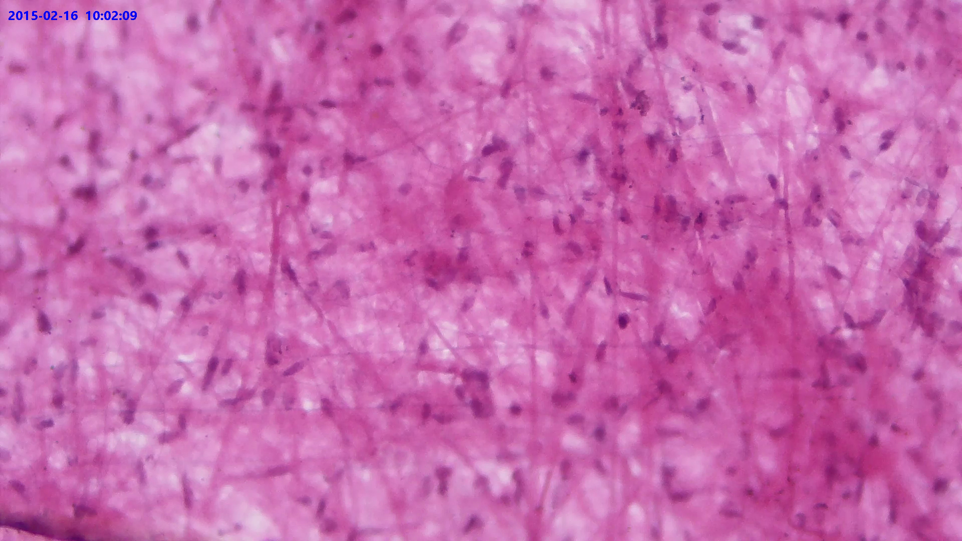 Loose Connective Tissue W. M.