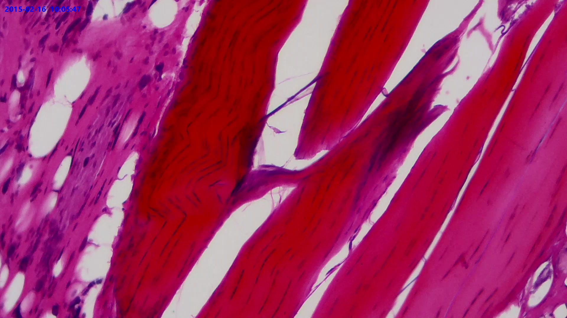 Fiber Connective Tissue. Sec.